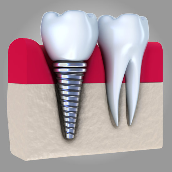 Valley View Dental - Kiran Khemani DDS - Castro Valley - Dental Implants