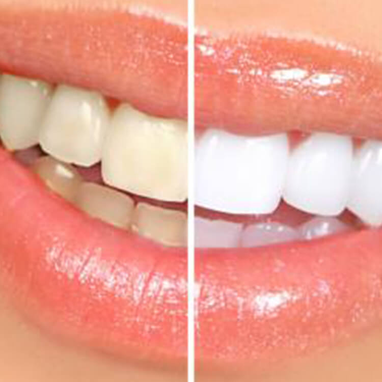 Valley View Dental - Kiran Khemani DDS - Castro Valley - Teeth Whitening