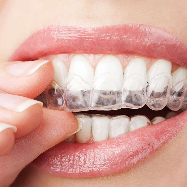Valley View Dental - Kiran Khemani DDS - Castro Valley - Invisalign